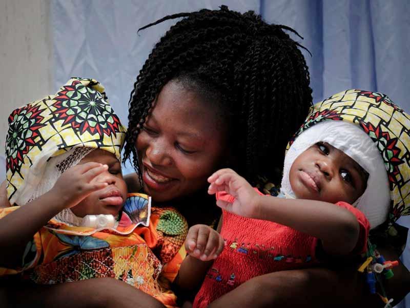 Madre de gemelas separadas por cirugía y bautizadas por el Santo Padre